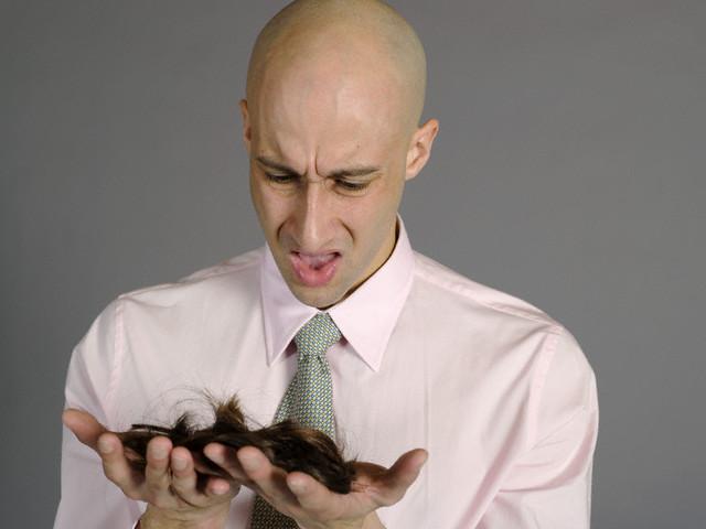 Balding Man Holding Hair